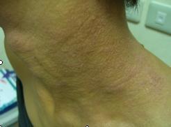 異位性皮膚炎2